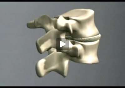 preventing back pain video